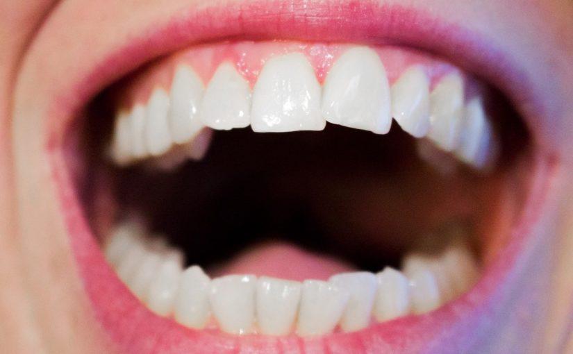 Aktualna technologia wykorzystywana w salonach stomatologii estetycznej zdoła sprawić, że odzyskamy śliczny uśmiech.